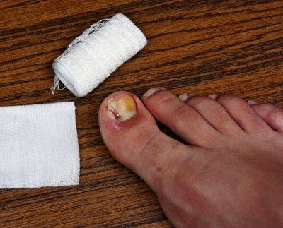 Common Toenail Problems