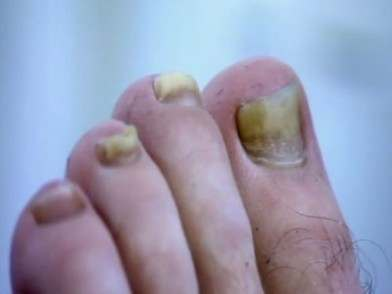 Is it Toenail Fungus?