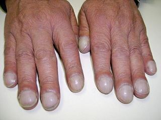 Abnormal Nails