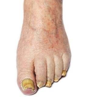 Nail Fungus Vs. Nail Psoriasis